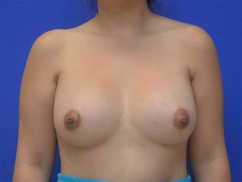 recovery time after breast surgery jpg 1024x770