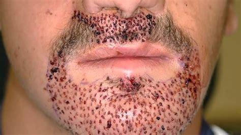 Std symptoms in men pimple on penis stdaware jpg 1280x720